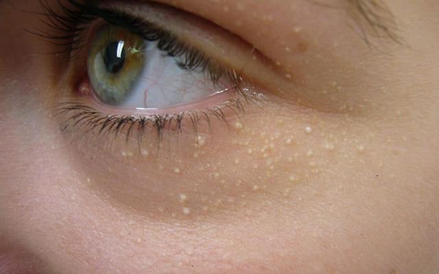 5 cách trị mụn thịt ở mắt