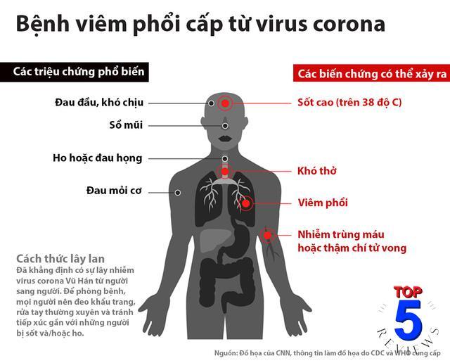 biểu hiện bệnh viêm hô hấp do Virus Corona