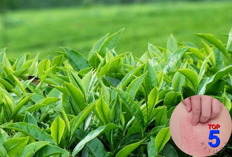 Chữa nổi mề đay bằng lá trà xanh